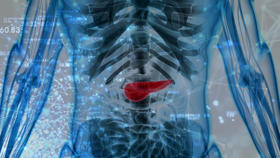 CureMatch Provides Optimism to Pancreatic Cancer Patients